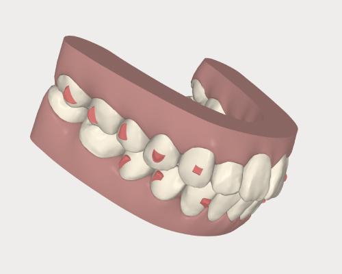 理想的な歯並び